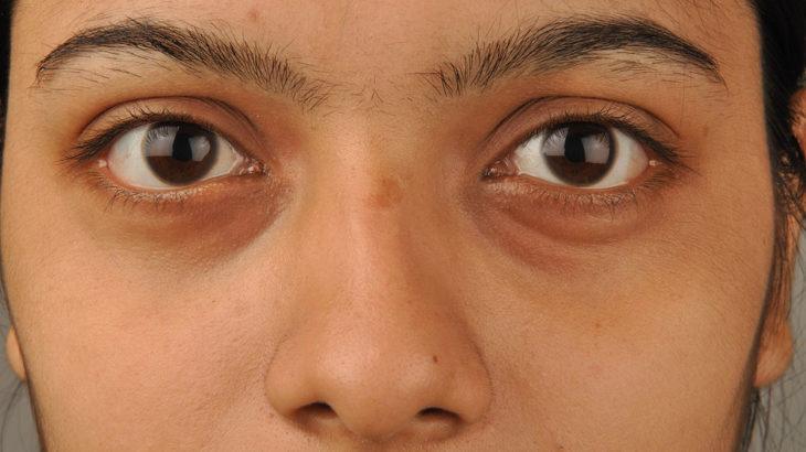 Ako na kruhy pod očami? 5 tipov, vďaka ktorým sa ich zbavíte!
